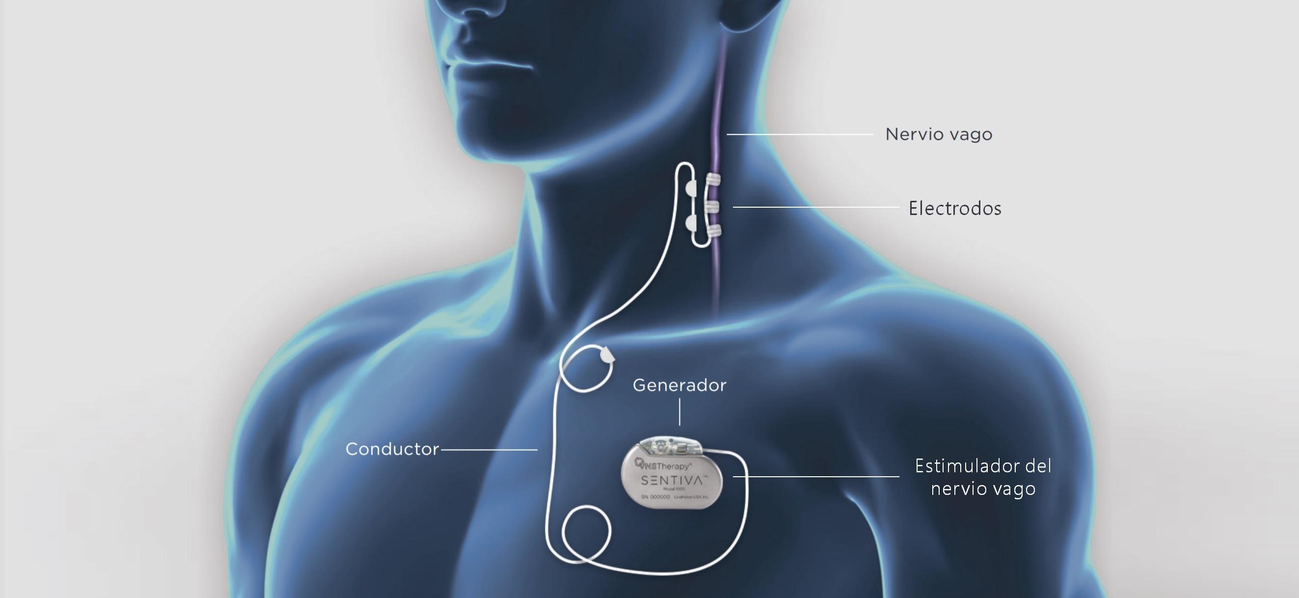 Estimulador del nervio vago