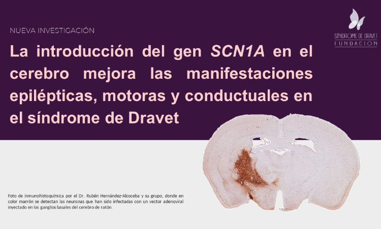 Introducción gen SCN1A
