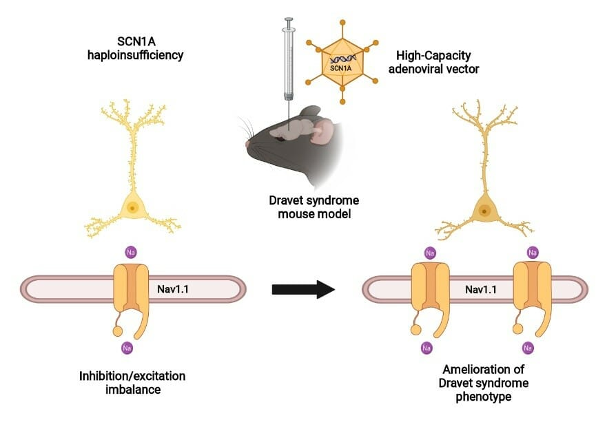Transfer of SCN1A to the brain of adolescent mouse model of Dravet syndrome